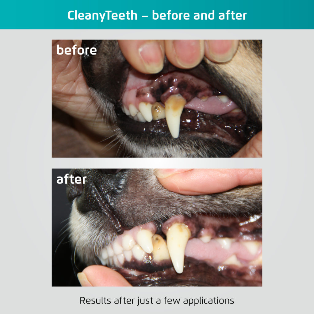 CleanyTeeth before and after pictures